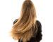 Thyroid Hairloss_0